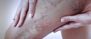 How and what to recover from severe varicose veins