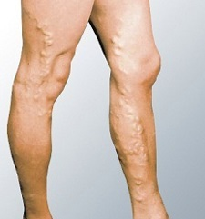 Manifestations of varicose veins