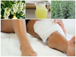 varicose veins treatment home remedies popular