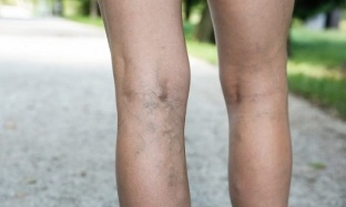 Causes of varicose veins in women