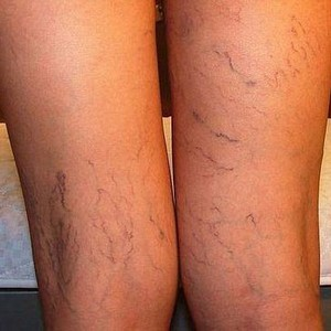 varicose veins on the legs