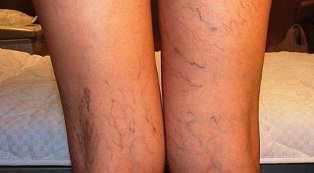 How to treat increased varicose veins on women's legs