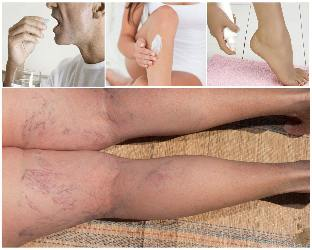 the pharmacological treatment of varicose veins on the legs