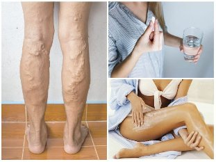 treatment of varicose veins on the legs