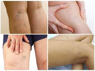 varicose veins on the legs pictures the reticular form