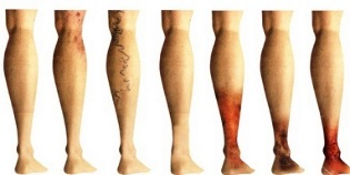 Various stages of female leg development
