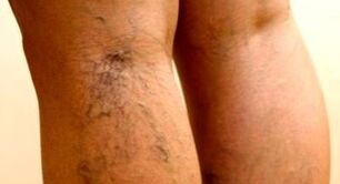Effective way to treat varicose veins